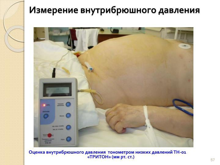 Измерение внутрибрюшного давления