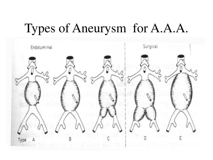Types of Aneurysm  for A.A.A.