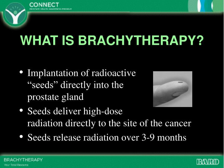 WHAT IS BRACHYTHERAPY?