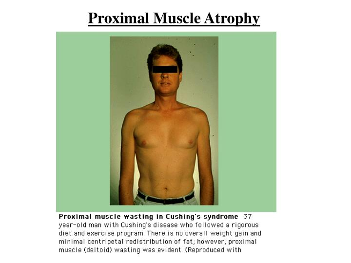 Proximal Muscle Atrophy