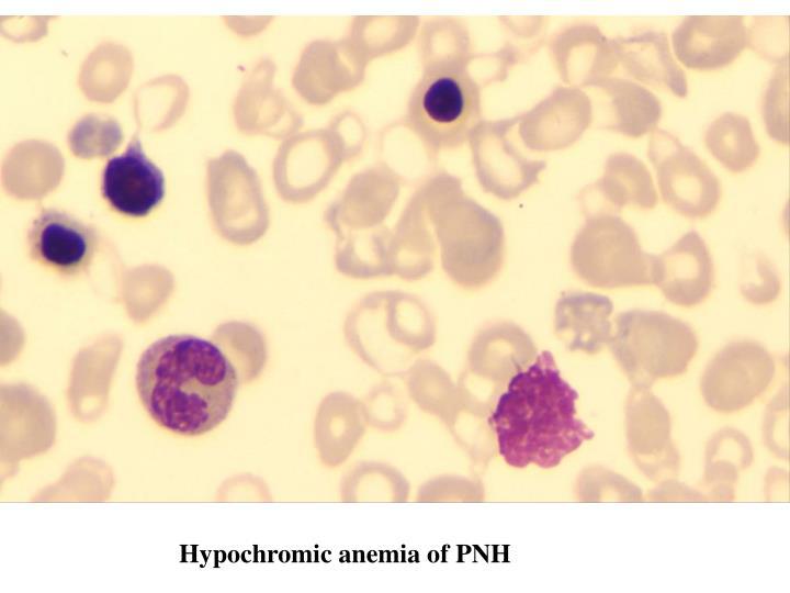 Hypochromic anemia of PNH