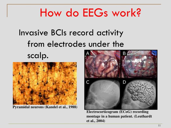 How do EEGs work?