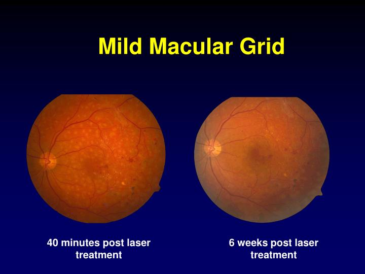 Mild Macular Grid