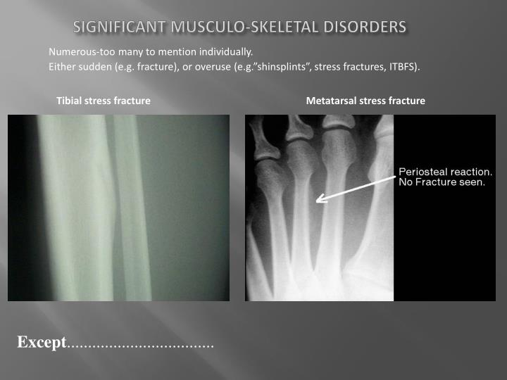 SIGNIFICANT MUSCULO-SKELETAL