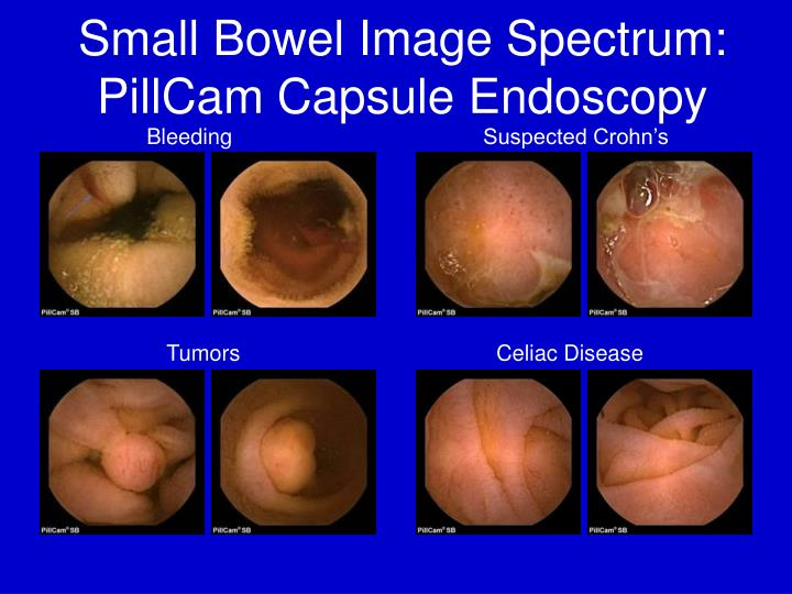 Ppt Capsule Endoscopy For The Foregut A Pill Worth