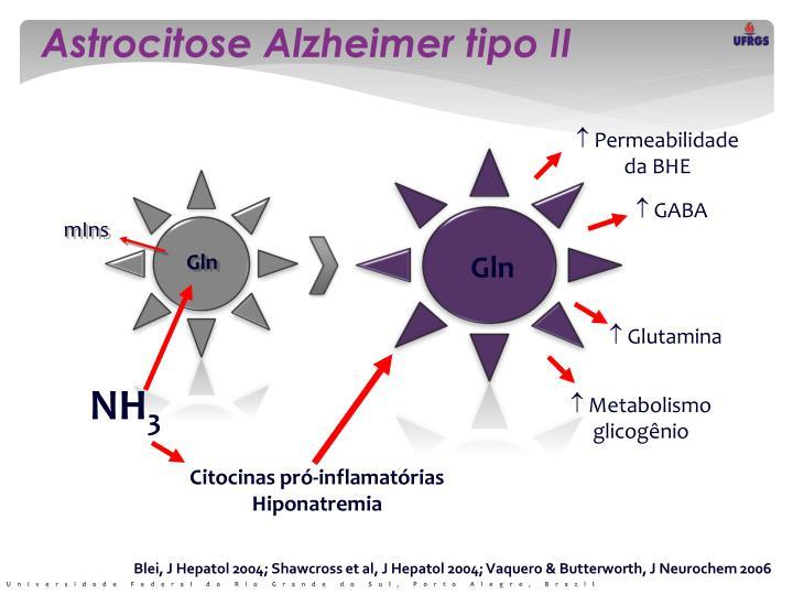 Astrocitose Alzheimer tipo II