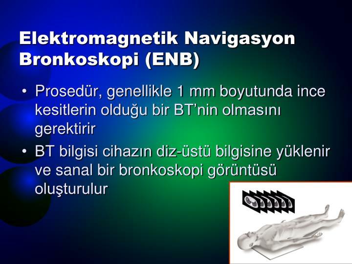 Elektromagnetik Navigasyon Bronkoskopi (ENB)