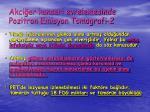 akci er kanseri evrelemesinde pozitron emisyon tomografi 2