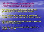 akci er kanseri evrelemesinde pozitron emisyon tomografi 3