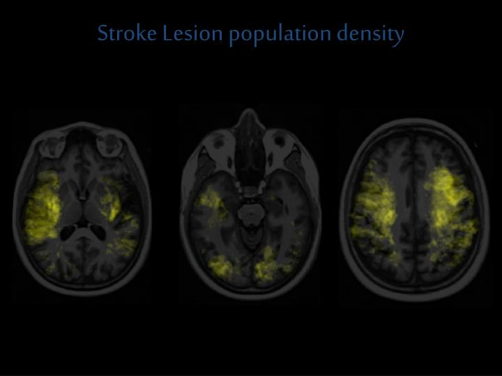 Stroke Lesion population density
