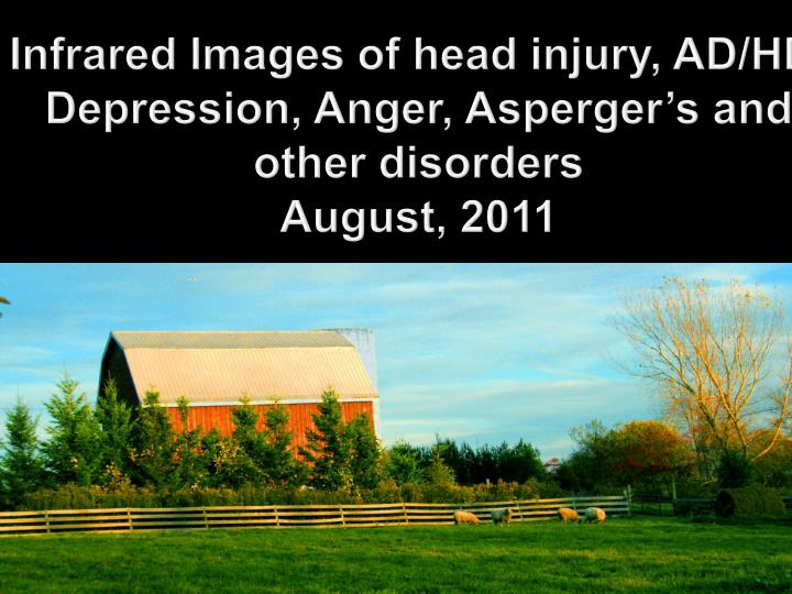 infrared images of head injury ad hd depression anger asperger s and other disorders august 2011 n.