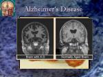 alzheimer s disease1