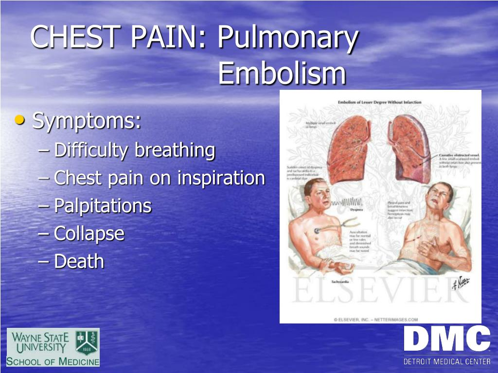PPT - CHEST PAIN PowerPoint Presentation - ID:3473696