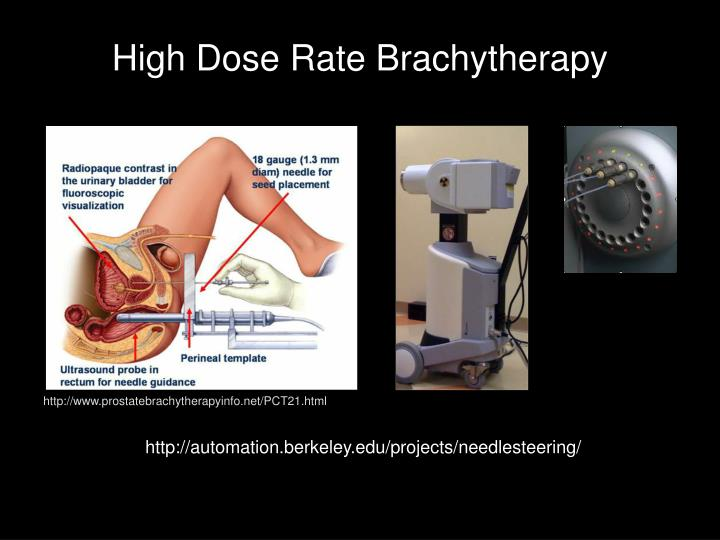 High Dose Rate Brachytherapy