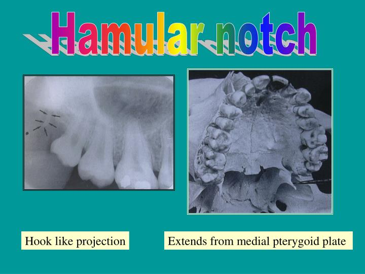 hamular notch