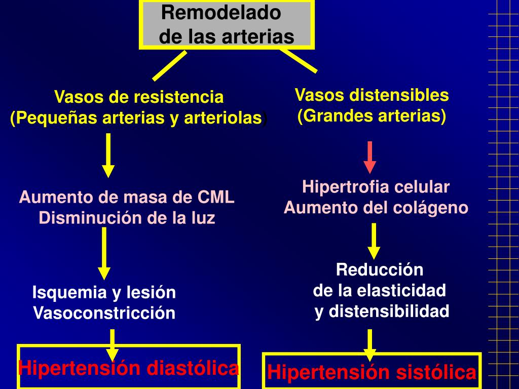 Cómo restaurar Causas hipertensión