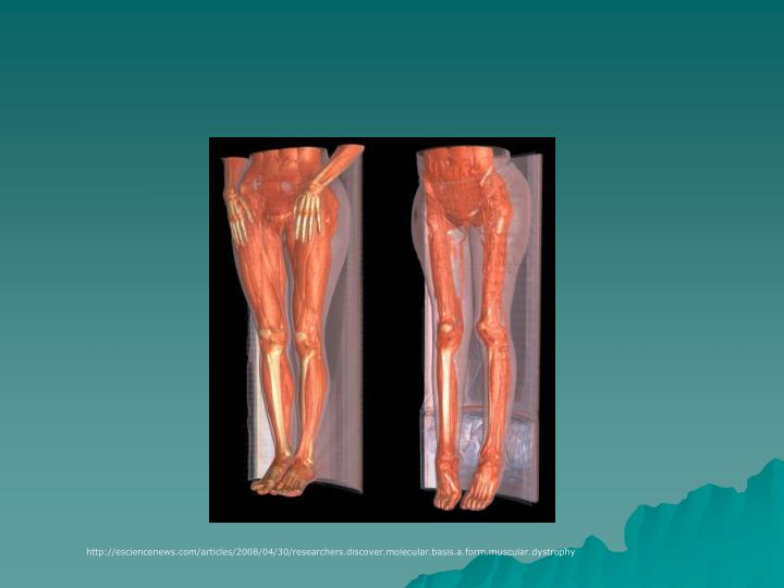 http://esciencenews.com/articles/2008/04/30/researchers.discover.molecular.basis.a.form.muscular.dystrophy