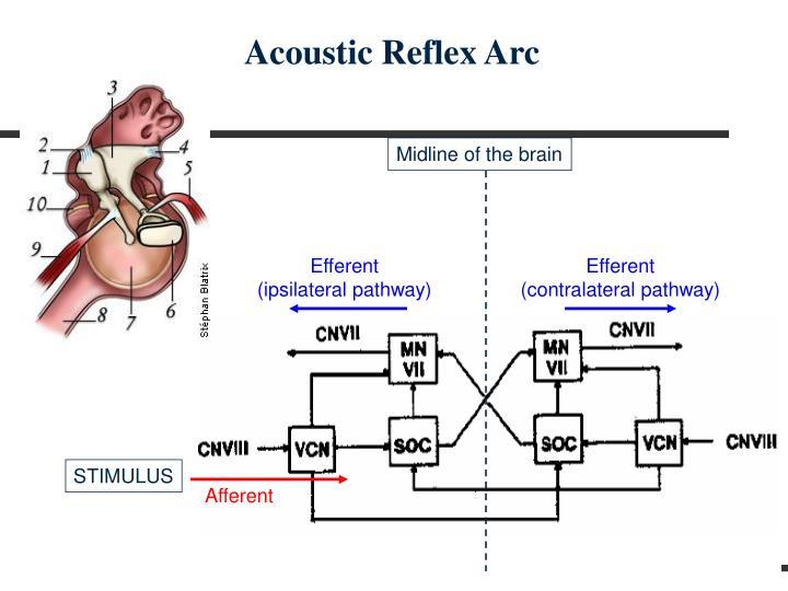 Acoustic Reflex Arc