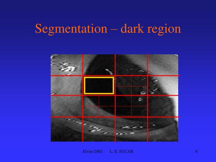 Segmentation – dark region