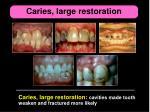 caries large restoration
