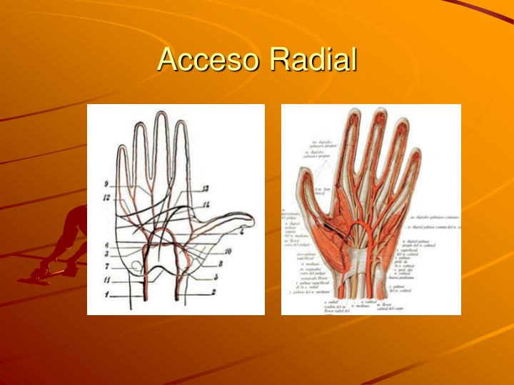Acceso Radial