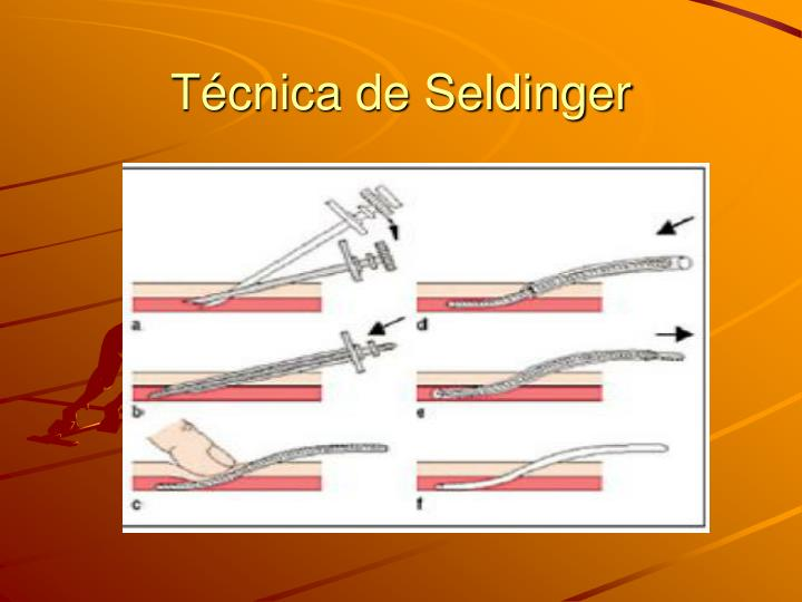 Técnica de Seldinger