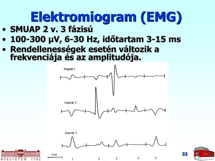 Elektromiogram (EMG)