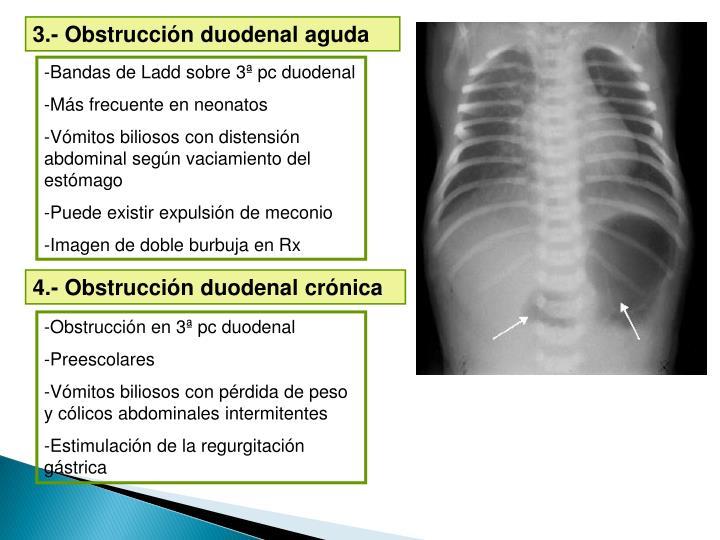 3.- Obstrucción duodenal aguda