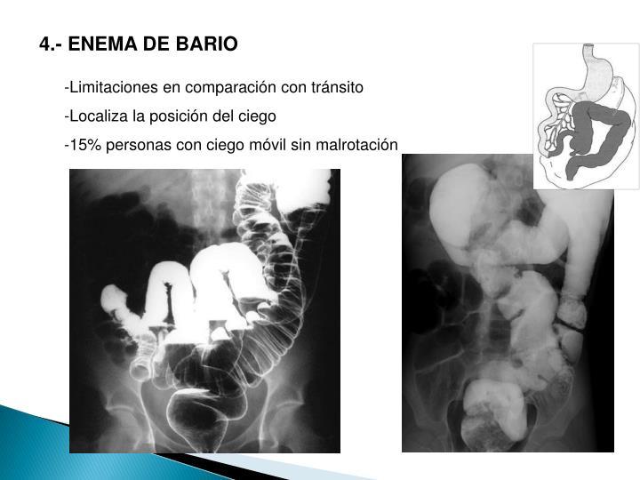 4.- ENEMA DE BARIO