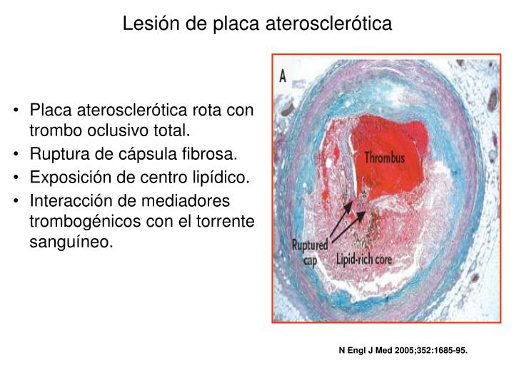 Lesión de placa aterosclerótica