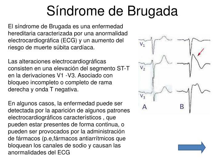 Síndrome de Brugada