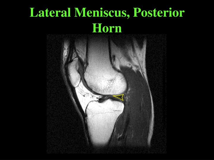 Lateral Meniscus, Posterior Horn