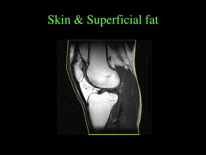 Skin & Superficial fat