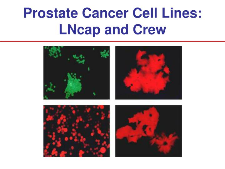 Prostate Cancer Cell Lines: LNcap and Crew
