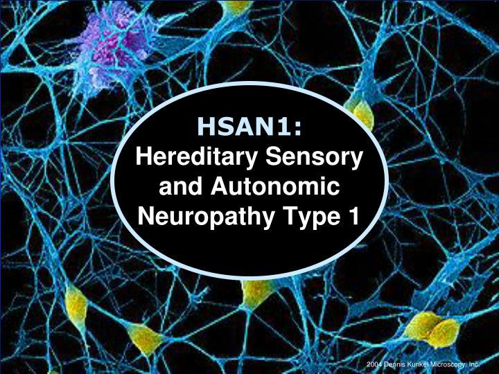 Hereditary peripheral neuropathies diagnosed by next ...  Hereditary Sensory And Autonomic Neuropathy