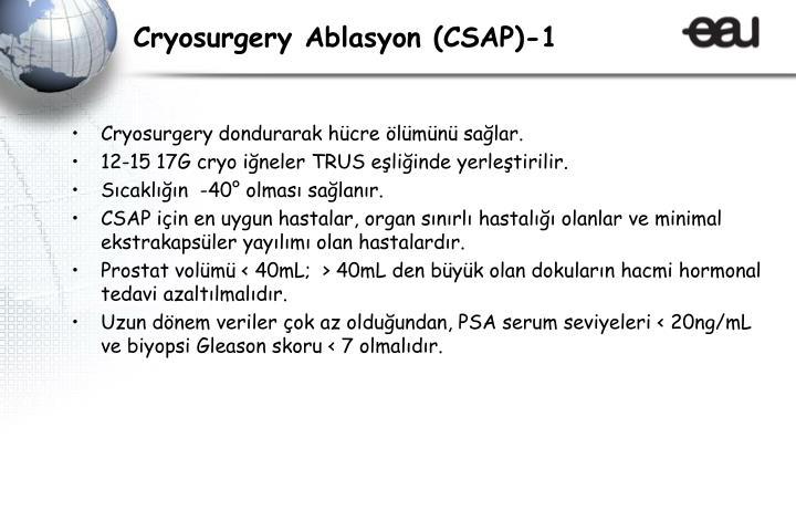 Cryosurgery Ablasyon (CSAP)-1