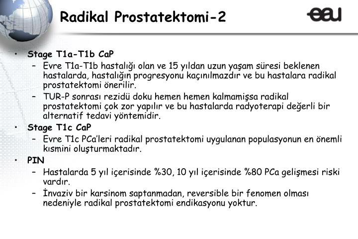 Radikal Prostatektomi-2