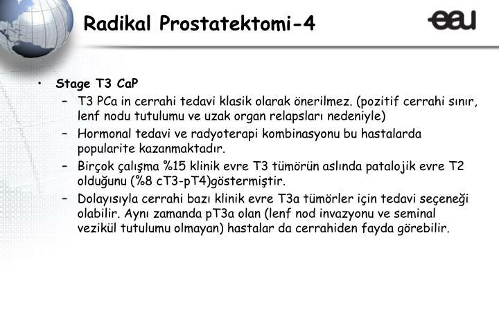 Radikal Prostatektomi-4