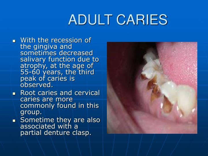 ADULT CARIES