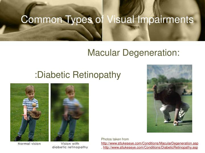 Common Types of Visual Impairments