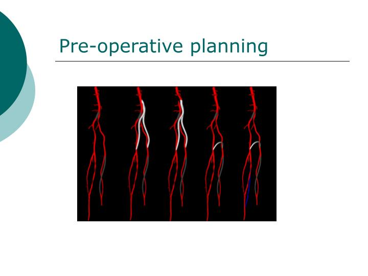 Pre-operative planning