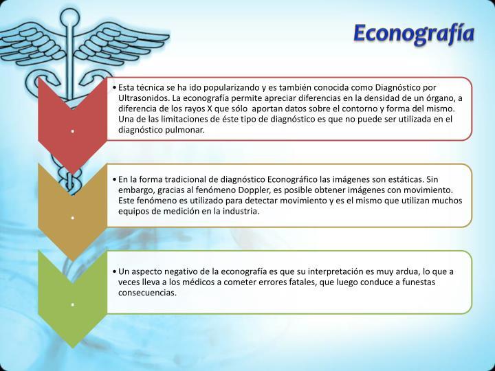 Econografía