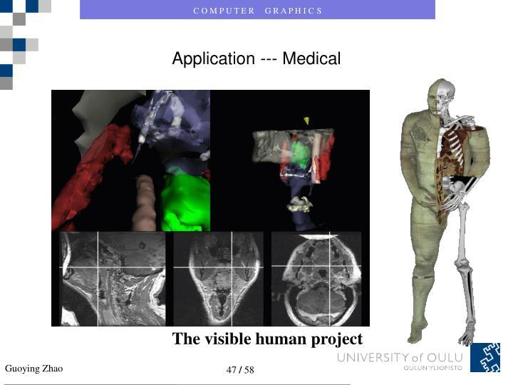 Application --- Medical