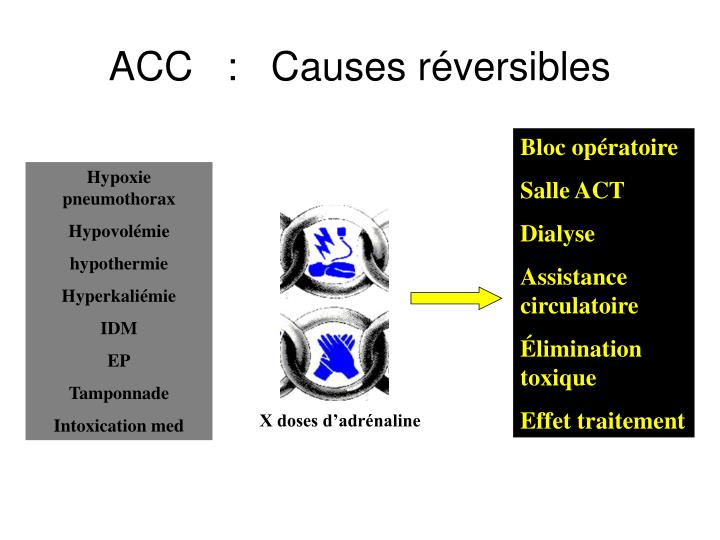 ACC   :   Causes réversibles