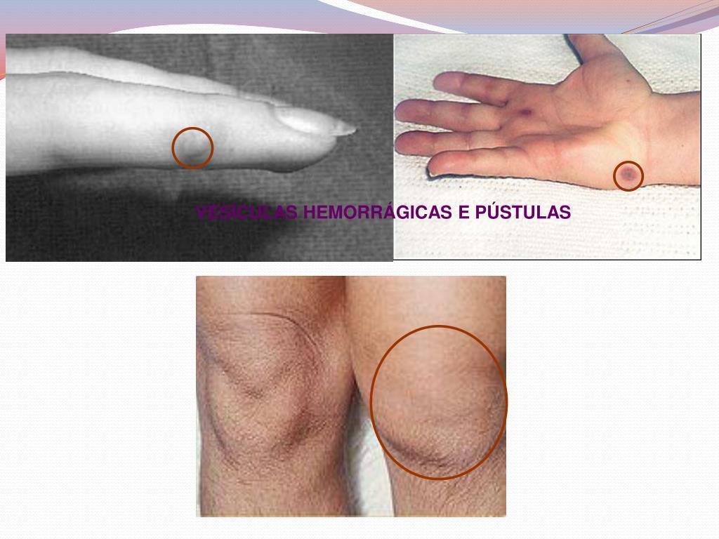 artrite cristalina
