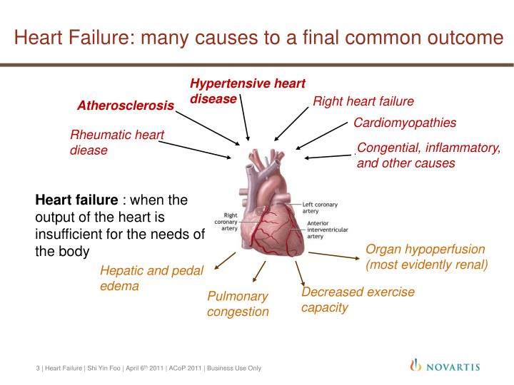 Heart failure many causes to a final common outcome