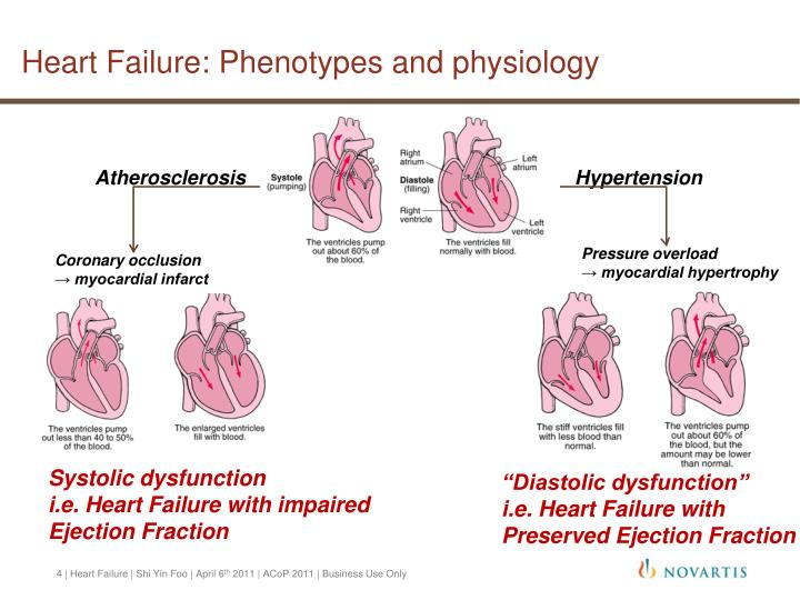 Heart Failure: Phenotypes and physiology