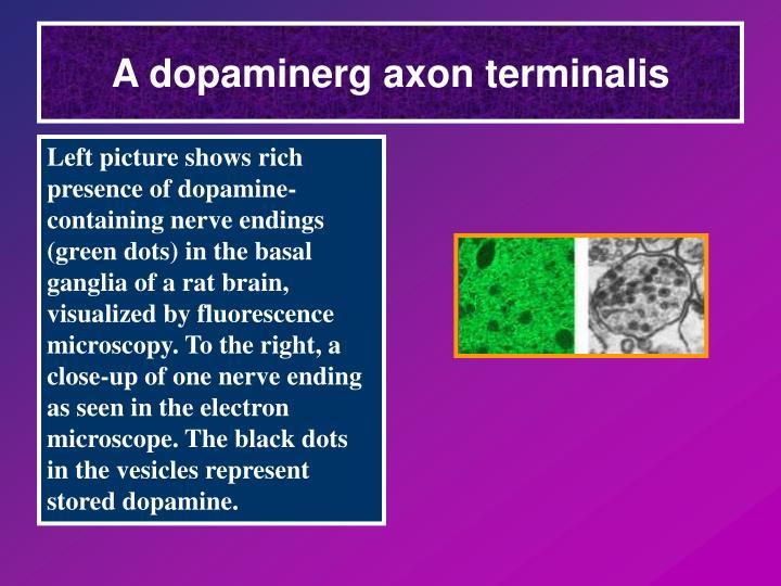 A dopaminerg axon terminalis