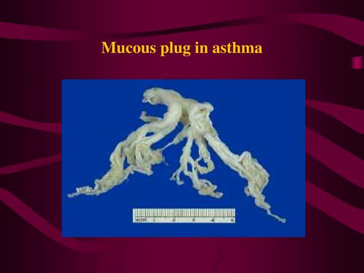 Mucous plug in asthma