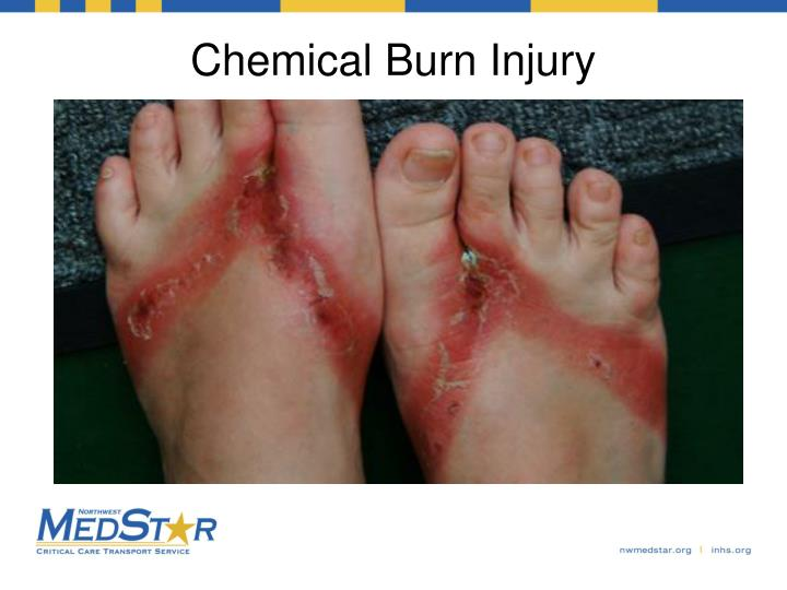 Chemical Burn Injury